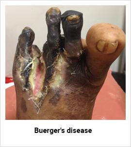 Buerger's Disease Doctor Mumbai, Buerger's Disease Treatment